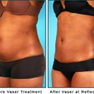 liposuction-physician-columbus-ohio